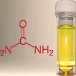 hydrogen-from-urine-alternative-fuel