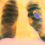 Pacemakers--heartbeat-vibrations-energy